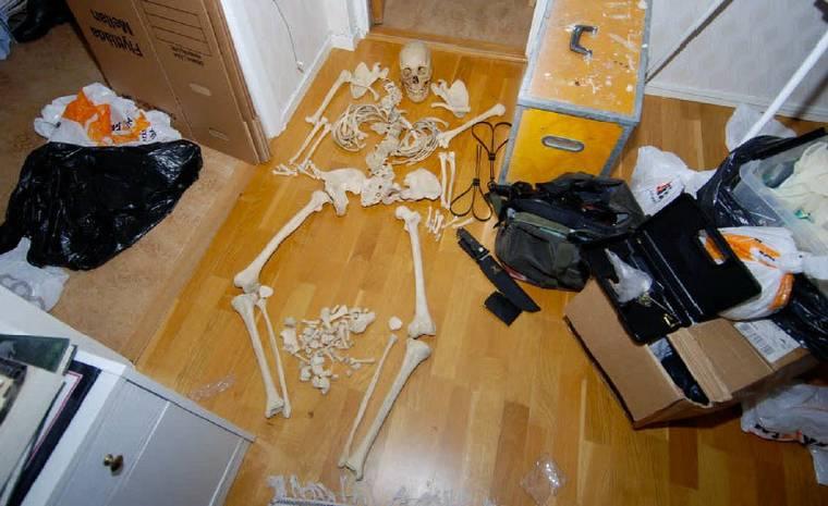 skelett7
